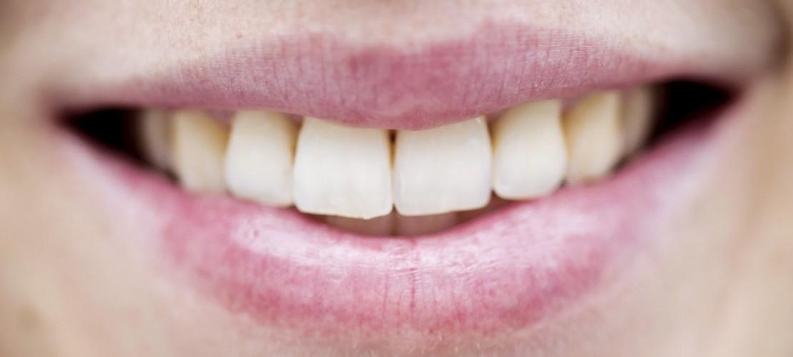 Zähne: Harte Kerle brauchen Pflege