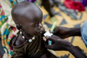 Im Südsudan sterben viele Kinder an Unterernährung. Deshalb versuchen auch hier Organisationen zu helfen. (Foto: Help/Simatis)
